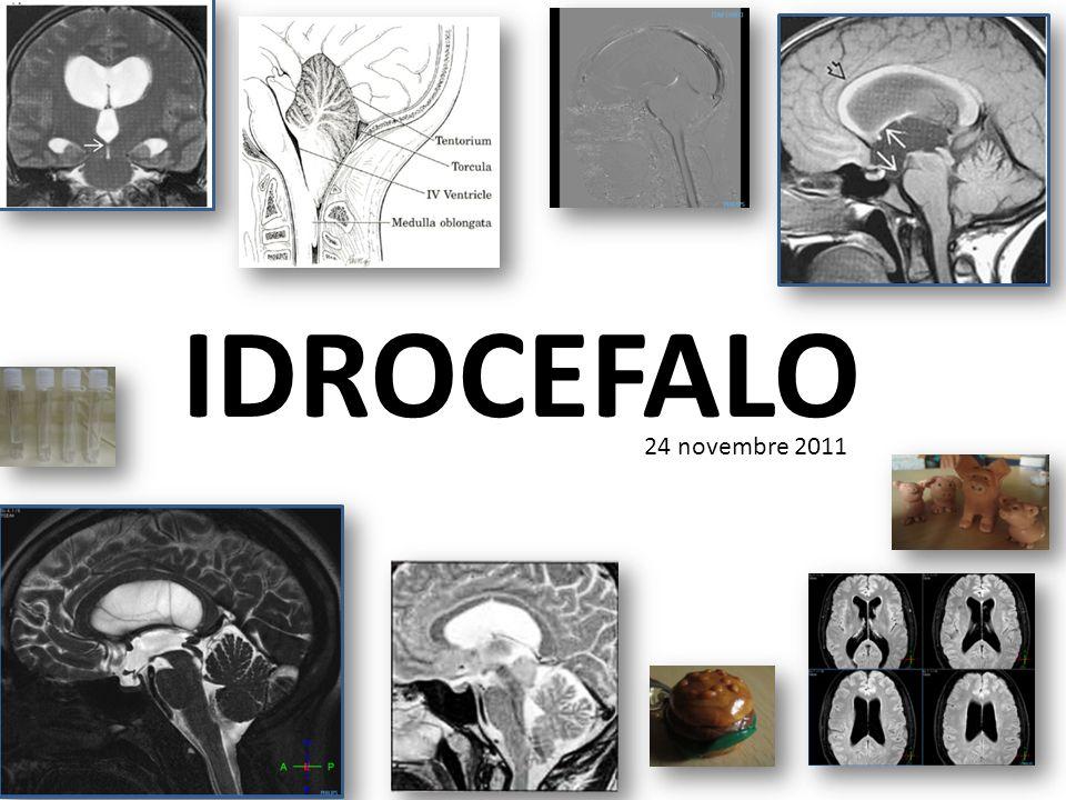 IDROCEFALO Definizione: dal greco acqua nel cranio Aumento patologico di liquor cefalo- rachidiano (LCR) allinterno dei ventricoli cerebrali o, meno frequentemente, negli spazi subaracnoidei (idrocefalo esterno) Deriva da uno squilibrio fra LCR prodotto e riassorbito