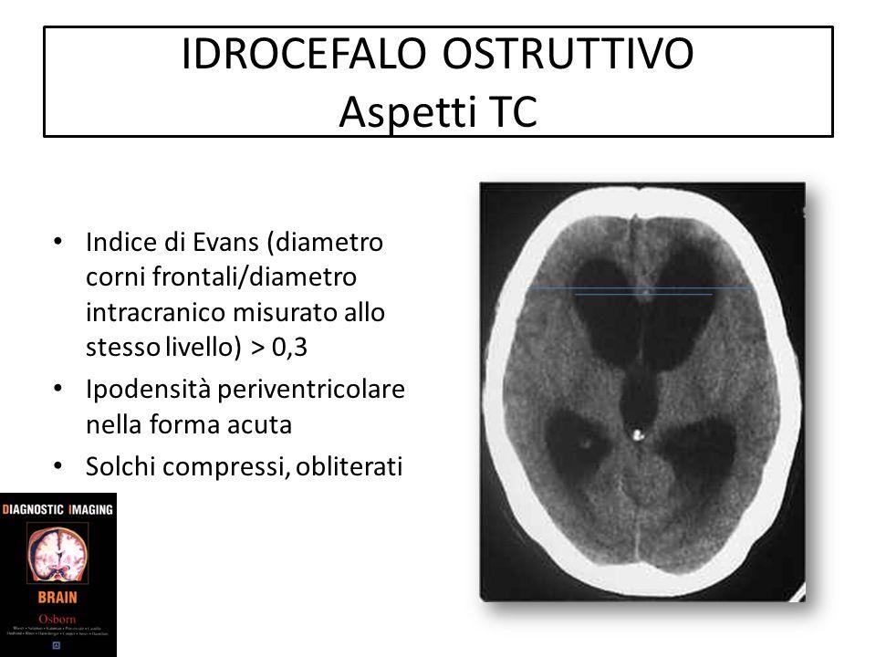 IDROCEFALO OSTRUTTIVO Aspetti TC Indice di Evans (diametro corni frontali/diametro intracranico misurato allo stesso livello) > 0,3 Ipodensità periven