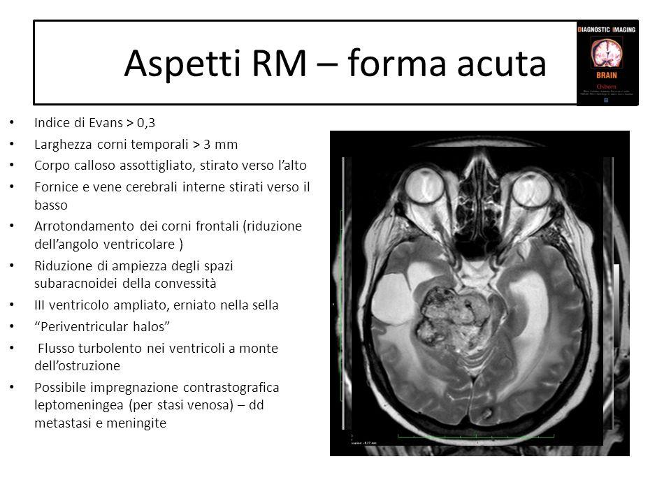 Aspetti RM – forma acuta Indice di Evans > 0,3 Larghezza corni temporali > 3 mm Corpo calloso assottigliato, stirato verso lalto Fornice e vene cerebr
