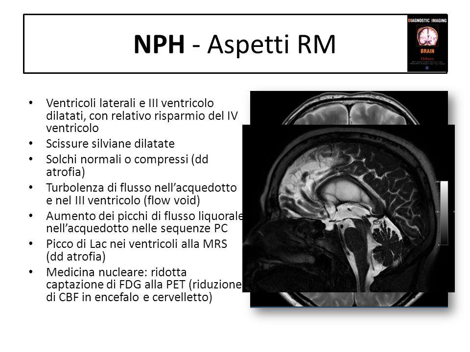 NPH - Aspetti RM Ventricoli laterali e III ventricolo dilatati, con relativo risparmio del IV ventricolo Scissure silviane dilatate Solchi normali o c