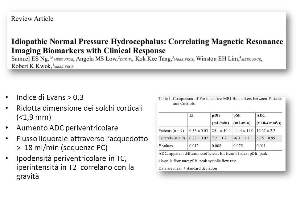 Indice di Evans > 0,3 Ridotta dimensione dei solchi corticali (<1,9 mm) Aumento ADC periventricolare Flusso liquorale attraverso lacquedotto > 18 ml/m