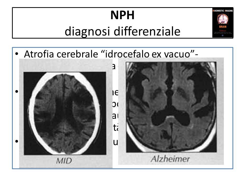 NPH diagnosi differenziale Atrofia cerebrale idrocefalo ex vacuo- aumento dampiezza di ventricoli, solchi e cisterne Demenza di Alzheimer (aumento dam