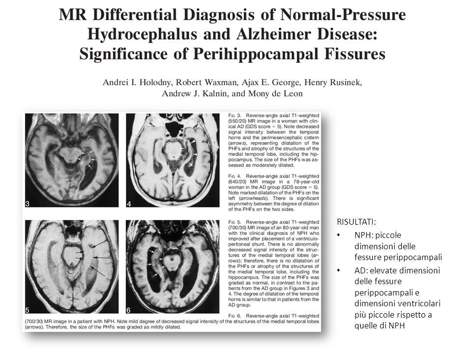 RISULTATI: NPH: piccole dimensioni delle fessure perippocampali AD: elevate dimensioni delle fessure perippocampali e dimensioni ventricolari più picc