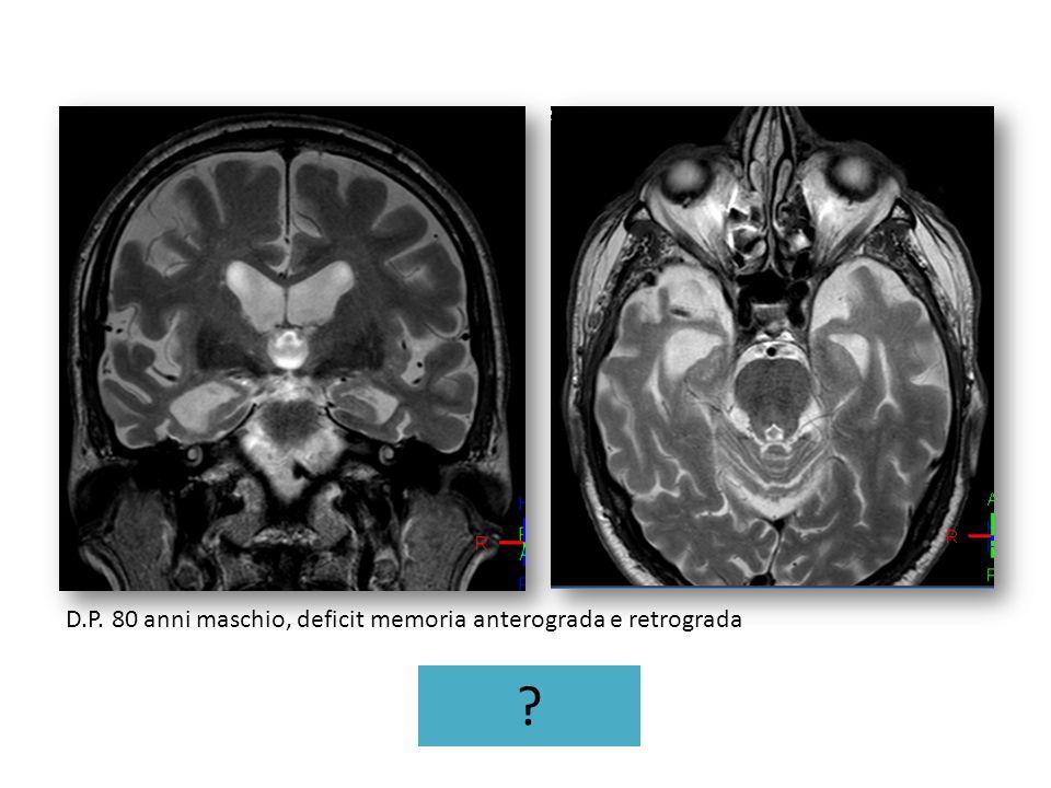 D.P. 80 anni maschio, deficit memoria anterograda e retrograda ?