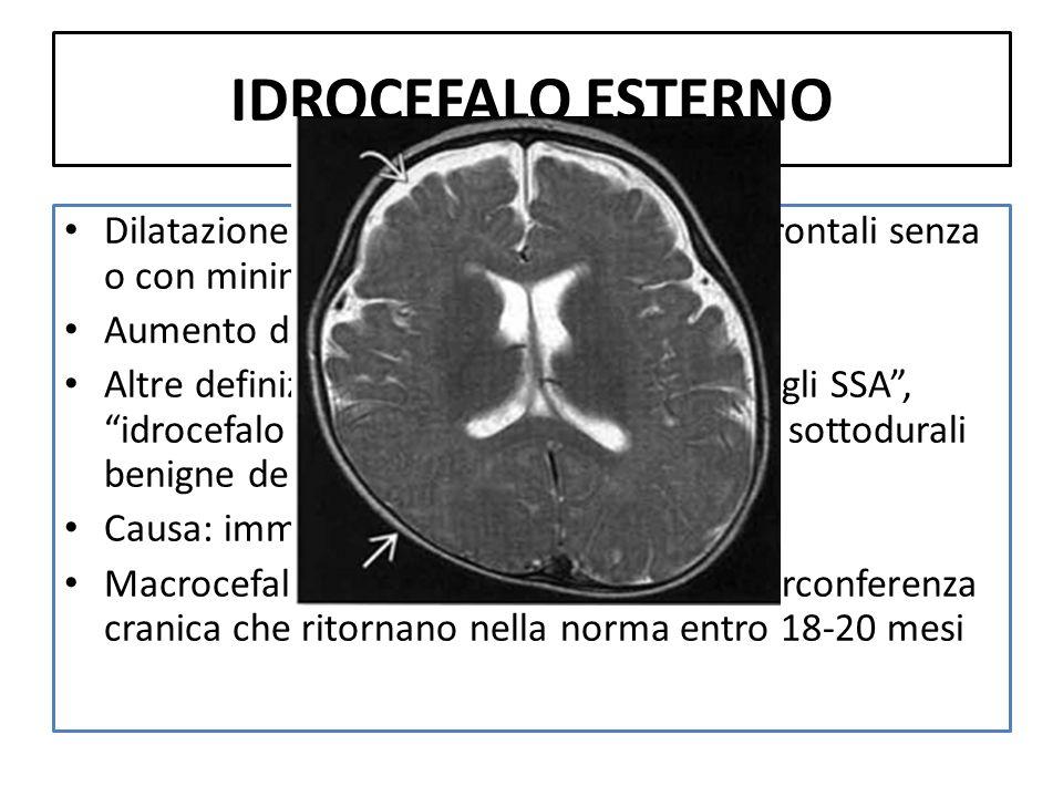 IDROCEFALO ESTERNO Dilatazione degli SSA prevalentemente frontali senza o con minima dilatazione ventricolare Aumento della circonferenza cranica Altr