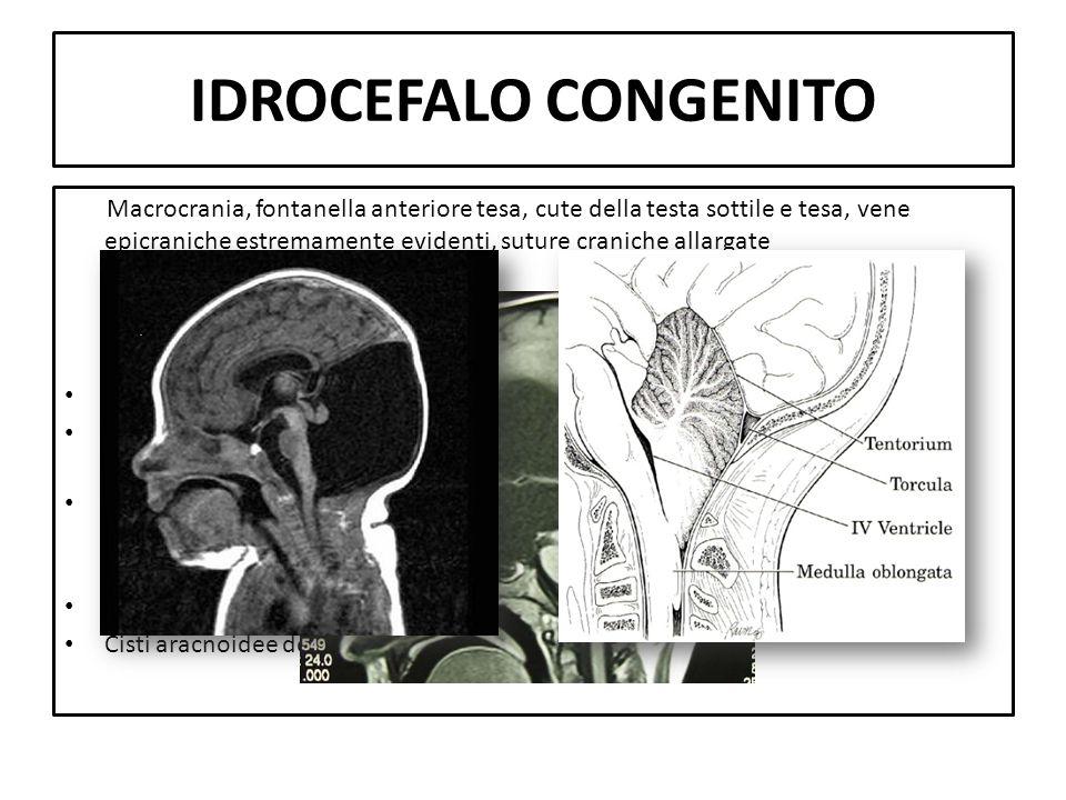 IDROCEFALO CONGENITO Macrocrania, fontanella anteriore tesa, cute della testa sottile e tesa, vene epicraniche estremamente evidenti, suture craniche
