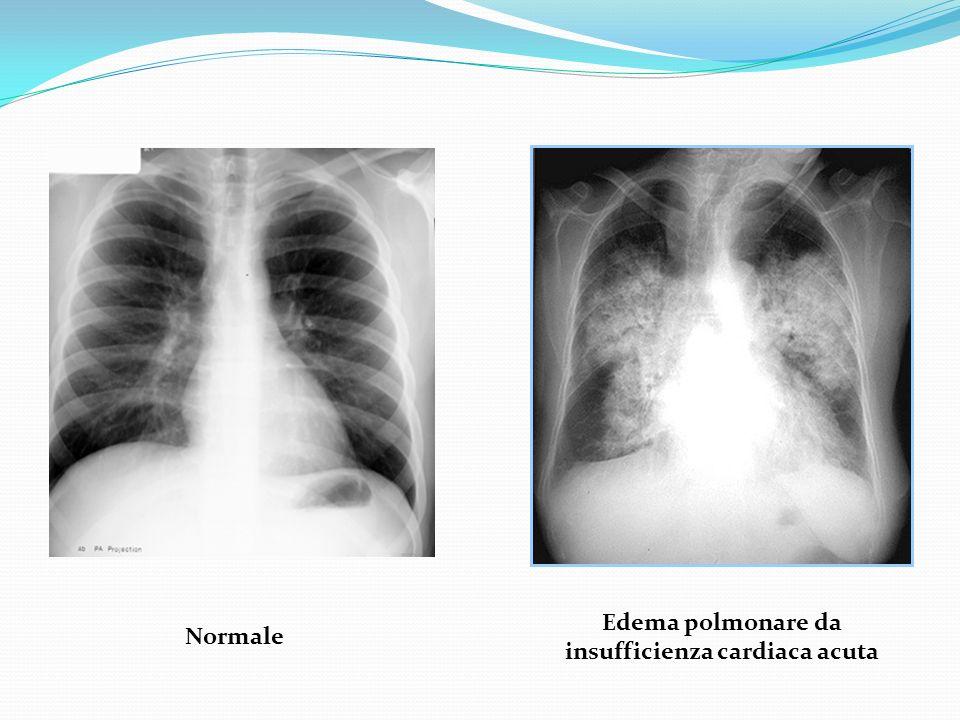 Edema polmonare da insufficienza cardiaca acuta Normale