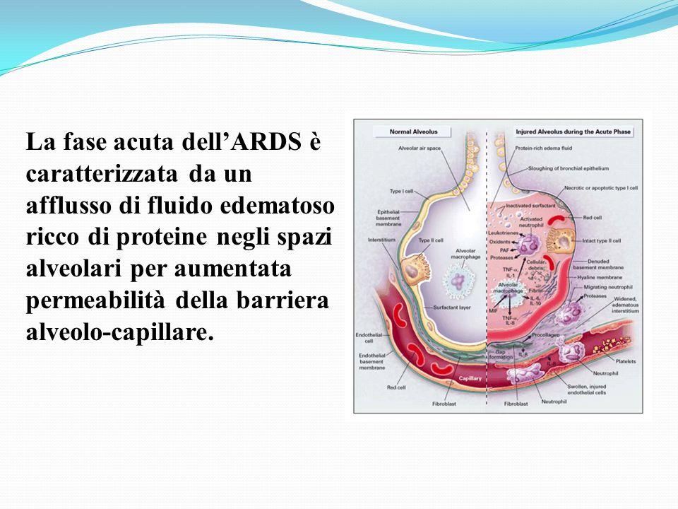 La fase acuta dellARDS è caratterizzata da un afflusso di fluido edematoso ricco di proteine negli spazi alveolari per aumentata permeabilità della ba