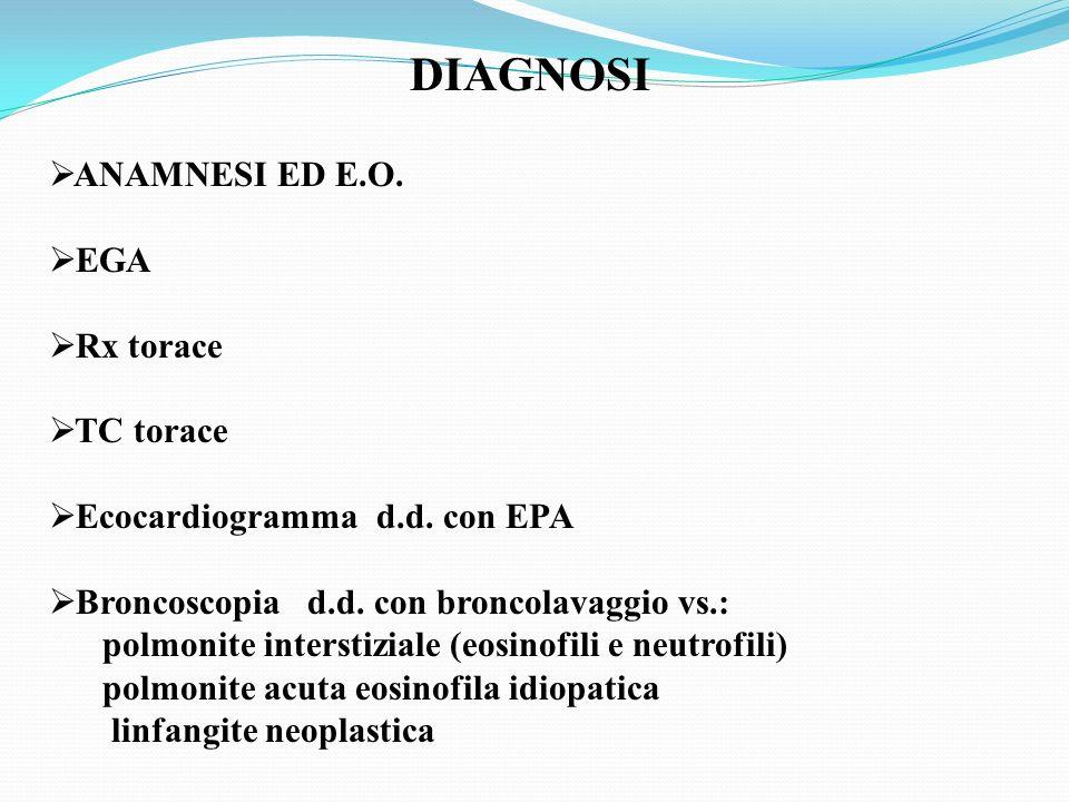 DIAGNOSI ANAMNESI ED E.O. EGA Rx torace TC torace Ecocardiogramma d.d. con EPA Broncoscopia d.d. con broncolavaggio vs.: polmonite interstiziale (eosi