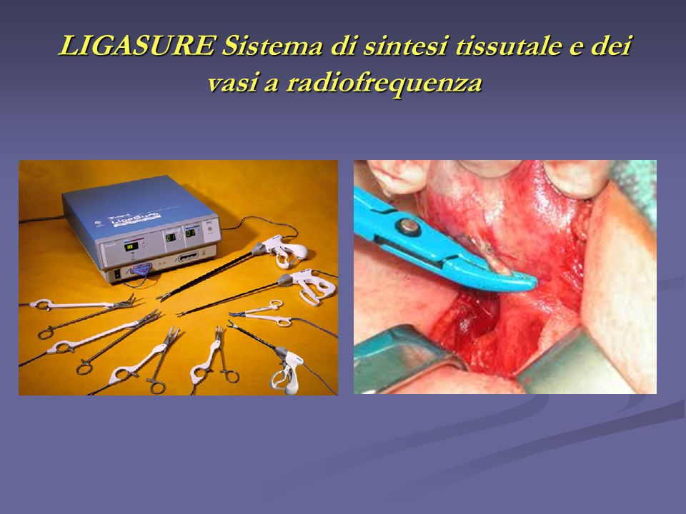 LIGASURE Sistema di sintesi tissutale e dei vasi a radiofrequenza