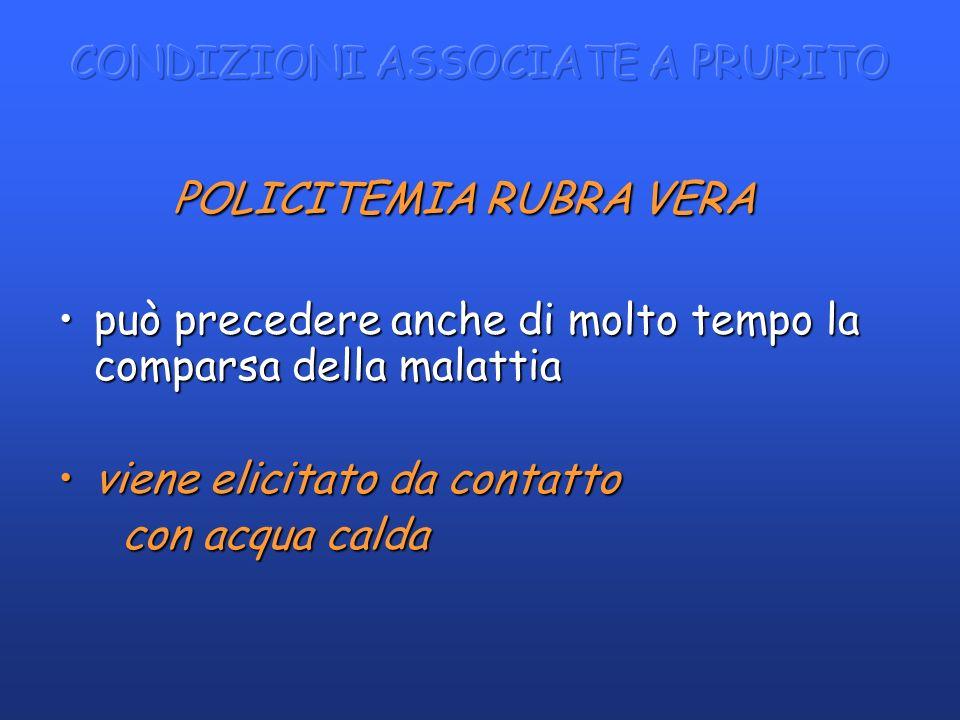 POLICITEMIA RUBRA VERA POLICITEMIA RUBRA VERA può precedere anche di molto tempo la comparsa della malattiapuò precedere anche di molto tempo la compa