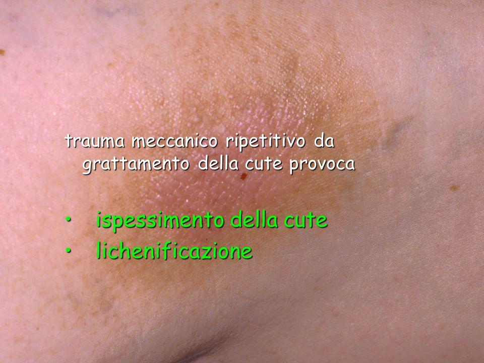 trauma meccanico ripetitivo da grattamento della cute provoca ispessimento della cute ispessimento della cute lichenificazione lichenificazione