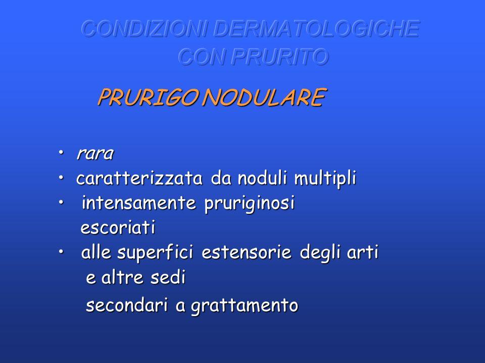 PRURIGO NODULARE PRURIGO NODULARE rararara caratterizzata da noduli multiplicaratterizzata da noduli multipli intensamente pruriginosi intensamente pr