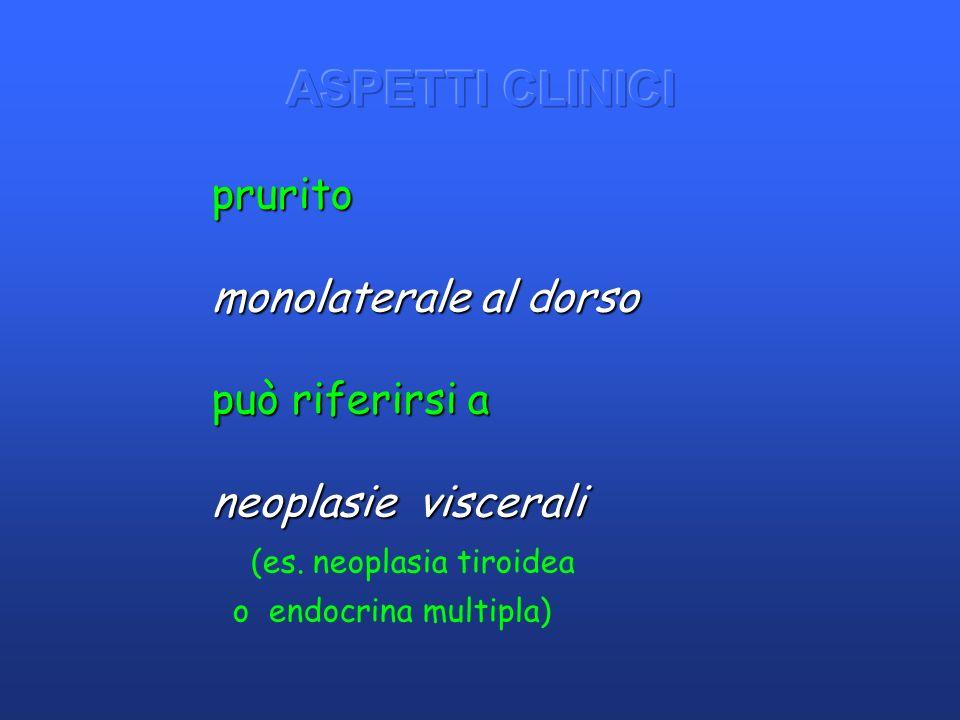 (es. neoplasia tiroidea o endocrina multipla) prurito monolaterale al dorso può riferirsi a neoplasie viscerali