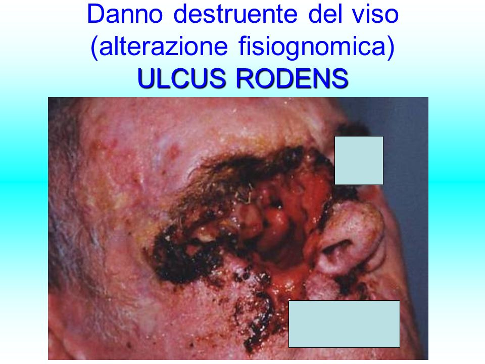 ULCUS RODENS Danno destruente del viso (alterazione fisiognomica) ULCUS RODENS