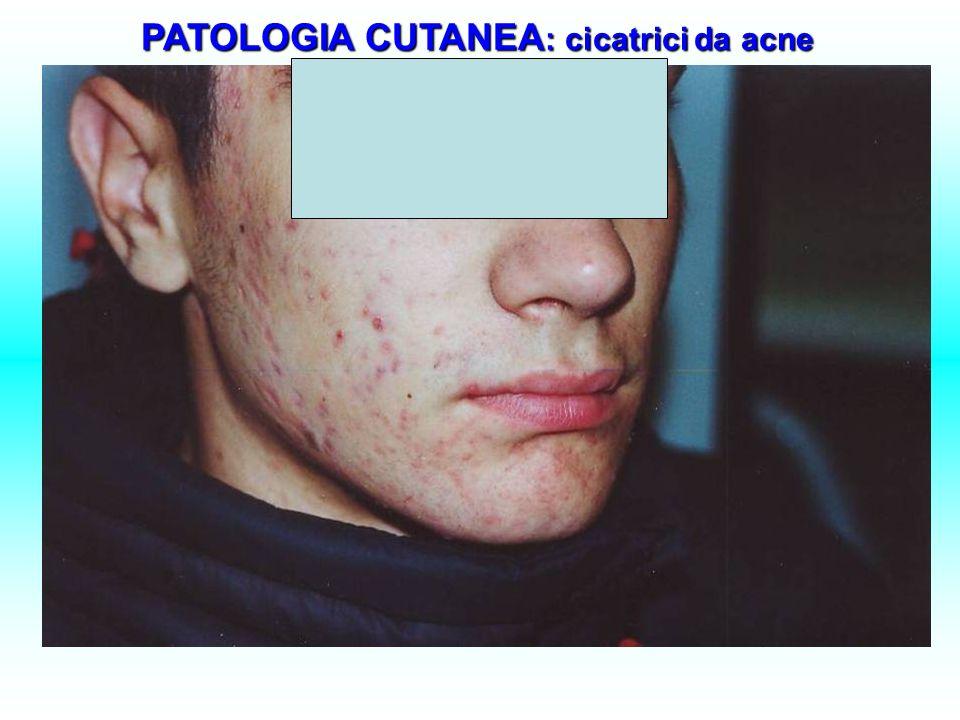 PATOLOGIA CUTANEA : cicatrici da acne PATOLOGIA CUTANEA : cicatrici da acne