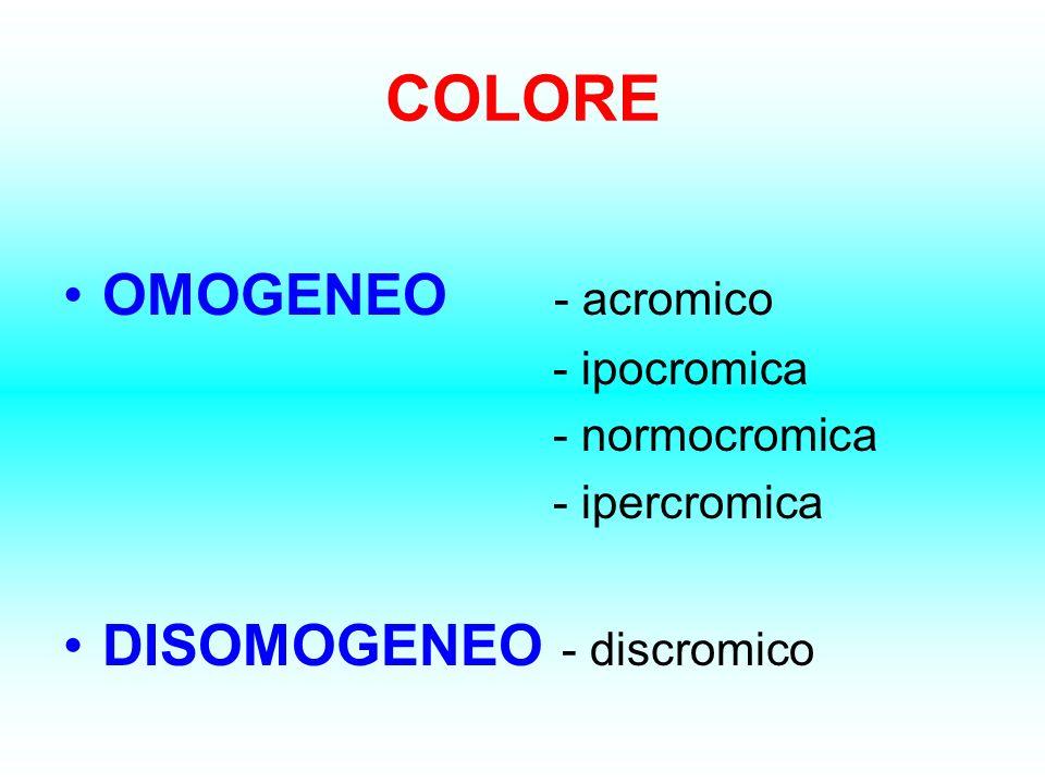 COLORE OMOGENEO - acromico - ipocromica - normocromica - ipercromica DISOMOGENEO - discromico
