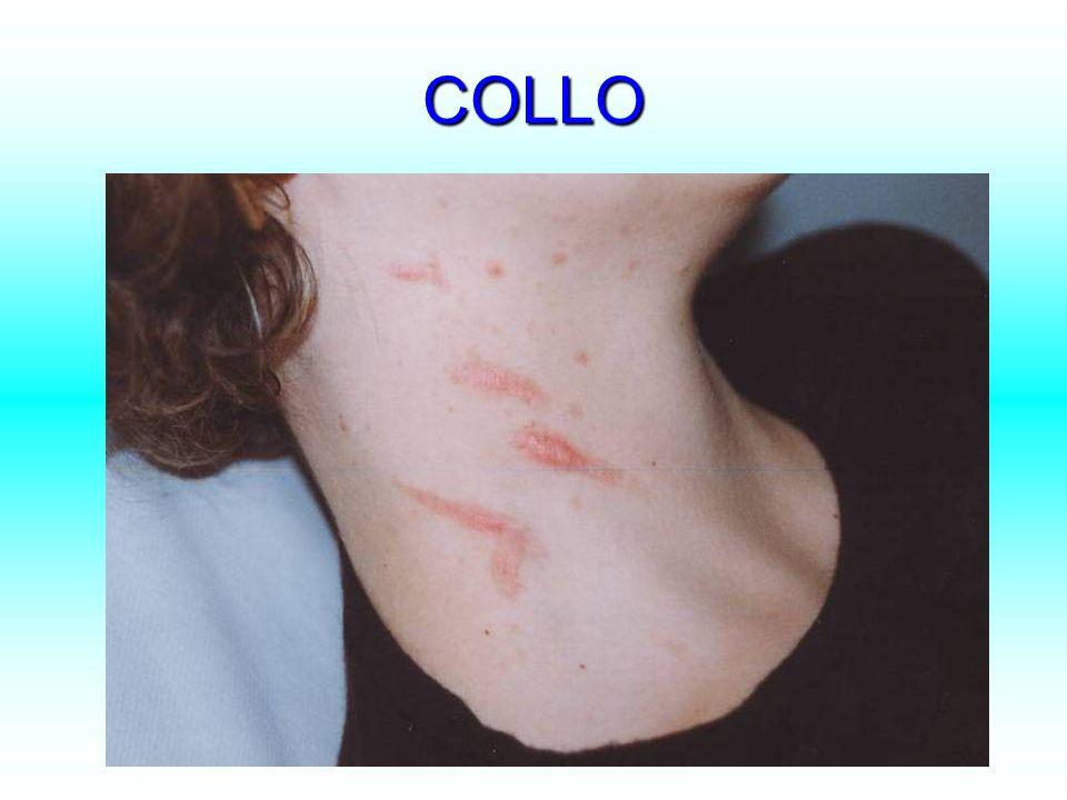 COLLO