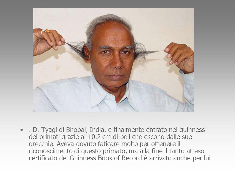 . D. Tyagi di Bhopal, India, è finalmente entrato nel guinness dei primati grazie ai 10.2 cm di peli che escono dalle sue orecchie. Aveva dovuto fatic