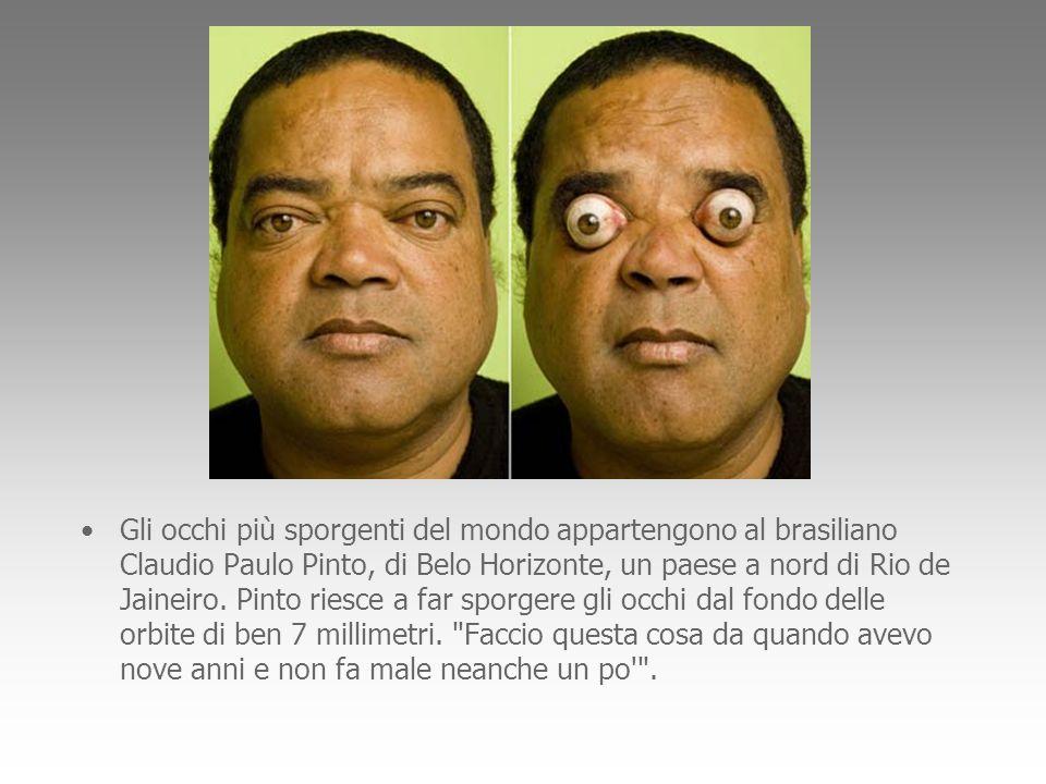 Gli occhi più sporgenti del mondo appartengono al brasiliano Claudio Paulo Pinto, di Belo Horizonte, un paese a nord di Rio de Jaineiro.