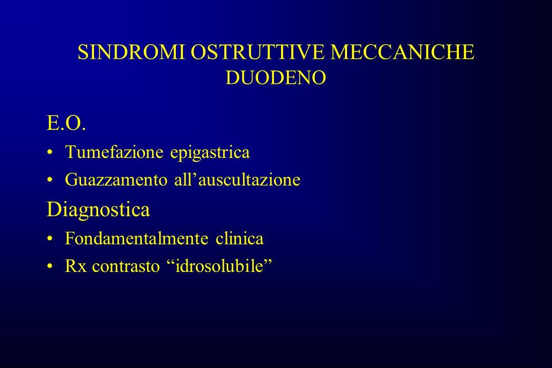 SINDROMI OSTRUTTIVE MECCANICHE DUODENO E.O.