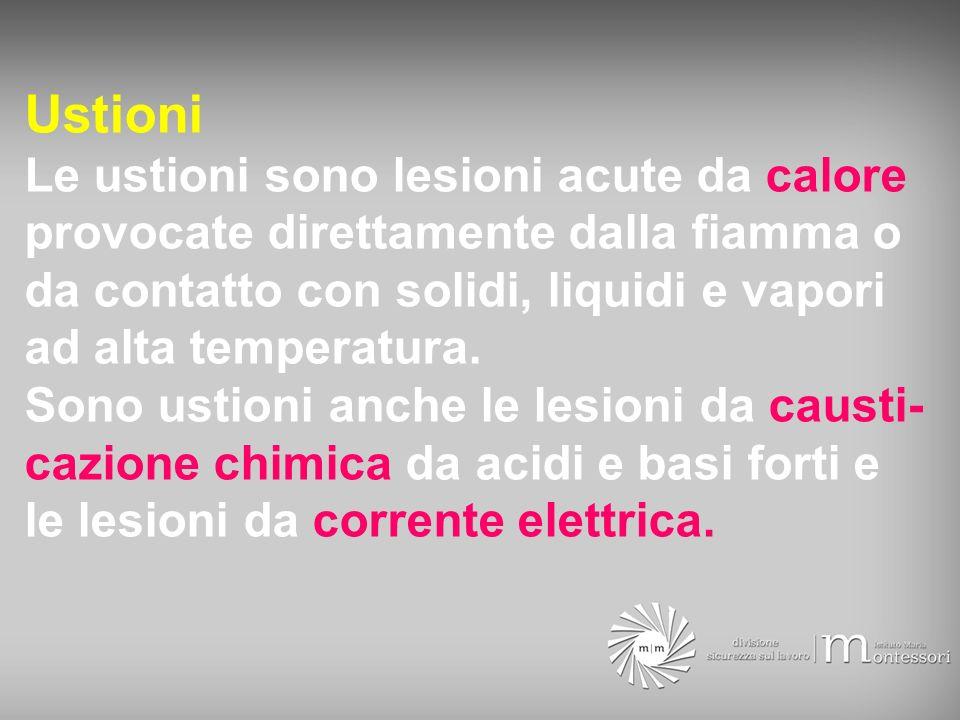 Ustioni Le ustioni sono lesioni acute da calore provocate direttamente dalla fiamma o da contatto con solidi, liquidi e vapori ad alta temperatura. So