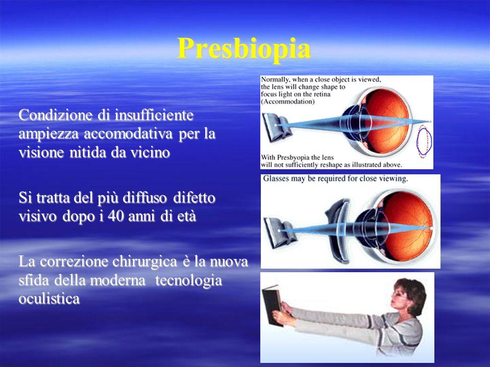 Valutazione soddisfazione del paziente Dipendenza dagli occhiali per vicino