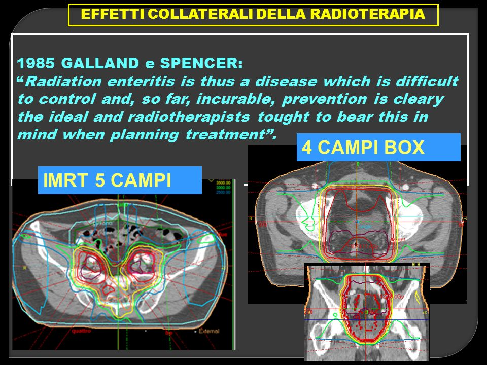 EFFETTI COLLATERALI DELLA RADIOTERAPIA 1985 GALLAND e SPENCER: Radiation enteritis is thus a disease which is difficult to control and, so far, incura