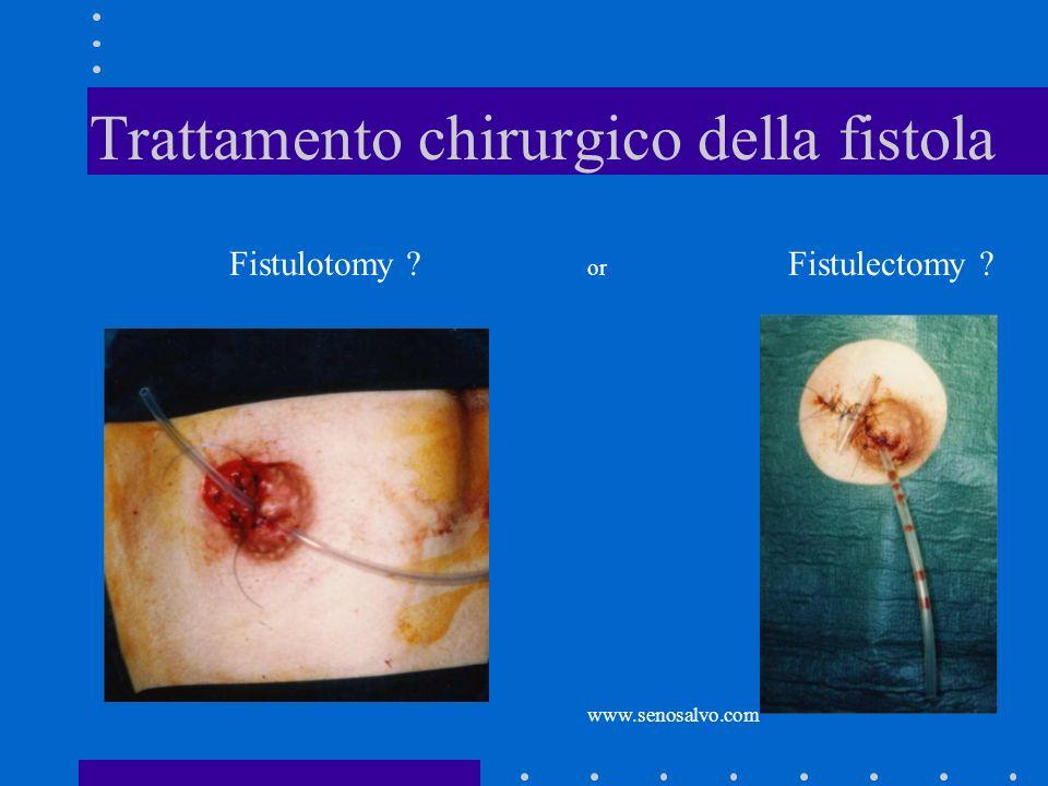 Trattamento chirurgico della fistola Fistulotomy ? or www.senosalvo.com Fistulectomy ?