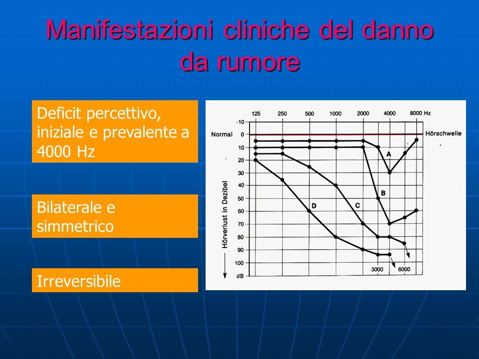 Manifestazioni cliniche del danno da rumore Deficit percettivo, iniziale e prevalente a 4000 Hz Bilaterale e simmetrico Irreversibile