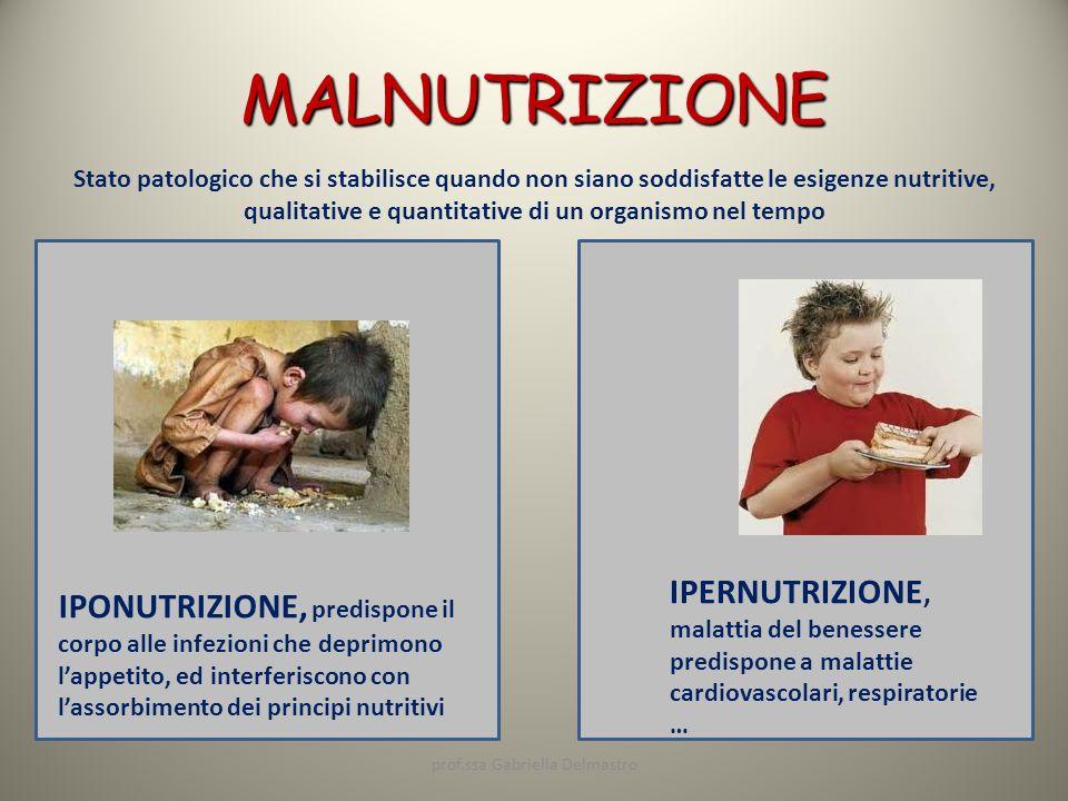 MALNUTRIZIONE Stato patologico che si stabilisce quando non siano soddisfatte le esigenze nutritive, qualitative e quantitative di un organismo nel te