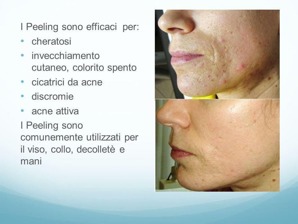 I Peeling sono efficaci per: cheratosi invecchiamento cutaneo, colorito spento cicatrici da acne discromie acne attiva I Peeling sono comunemente util