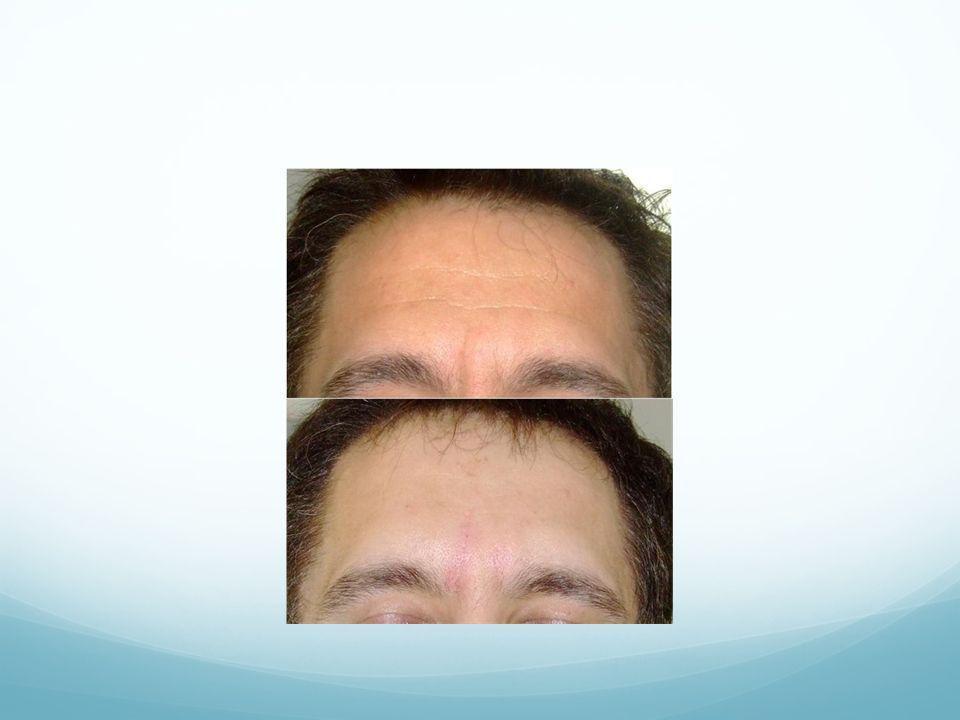 l Plexer può essere impiegato per molteplici interventi di Soft chirurgia, come: Blefaroplastica, e trattamento di rughe e lassità lifting del collo, del viso e del corpo eliminazione di discromie e macchie rimozione di nei, verruche, fibromi e discheratosi eliminazione di xantelasmi e cisti sebacee trattamento di smagliature riduzione di cheloidi e cicatrici post-acneiche trattamento dellacne in fase attiva correzioni di cicatrici chirurgiche Eliminazione di tatuaggi