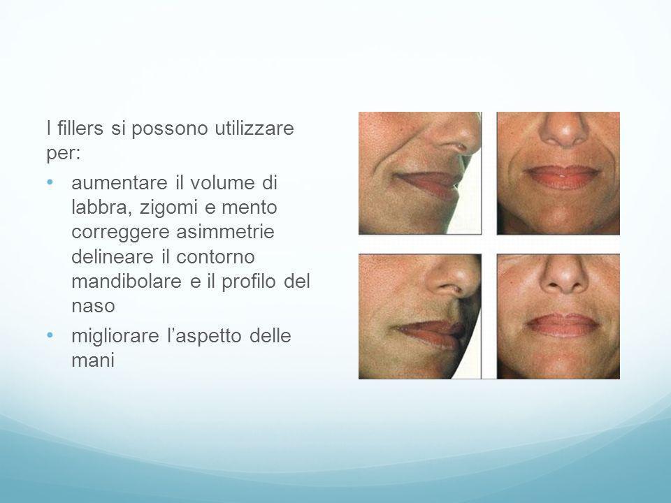 I fillers si possono utilizzare per: aumentare il volume di labbra, zigomi e mento correggere asimmetrie delineare il contorno mandibolare e il profil