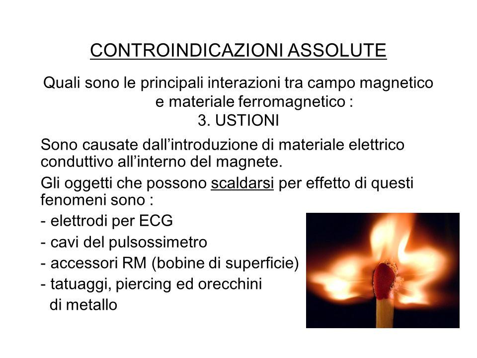 CONTROINDICAZIONI ASSOLUTE Quali sono le principali interazioni tra campo magnetico e materiale ferromagnetico : 3. USTIONI Sono causate dallintroduzi