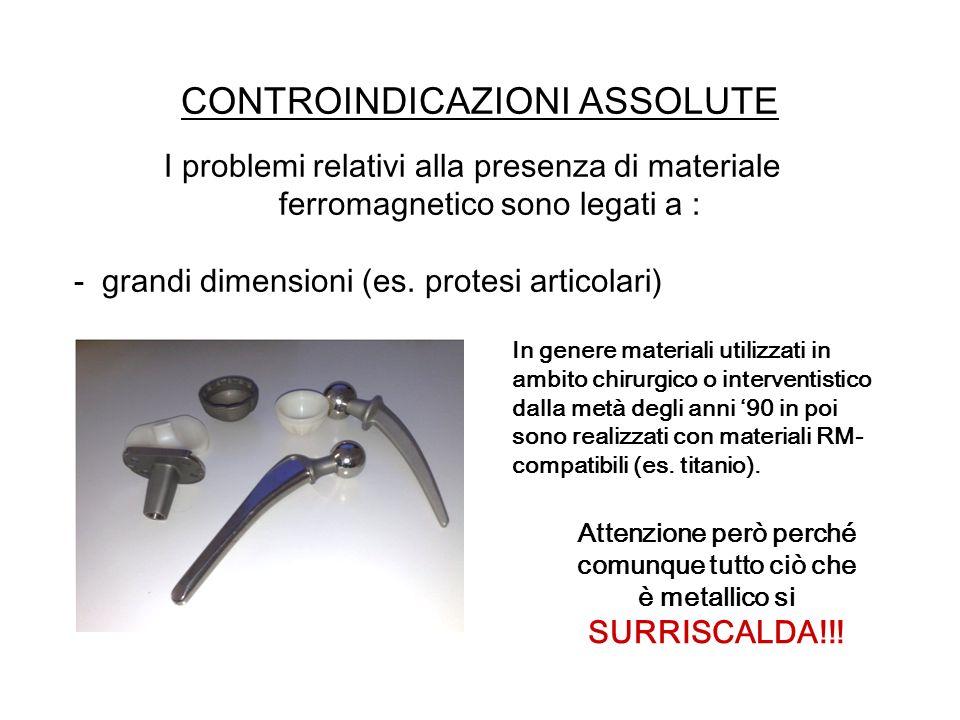 CONTROINDICAZIONI ASSOLUTE I problemi relativi alla presenza di materiale ferromagnetico sono legati a : - grandi dimensioni (es. protesi articolari)