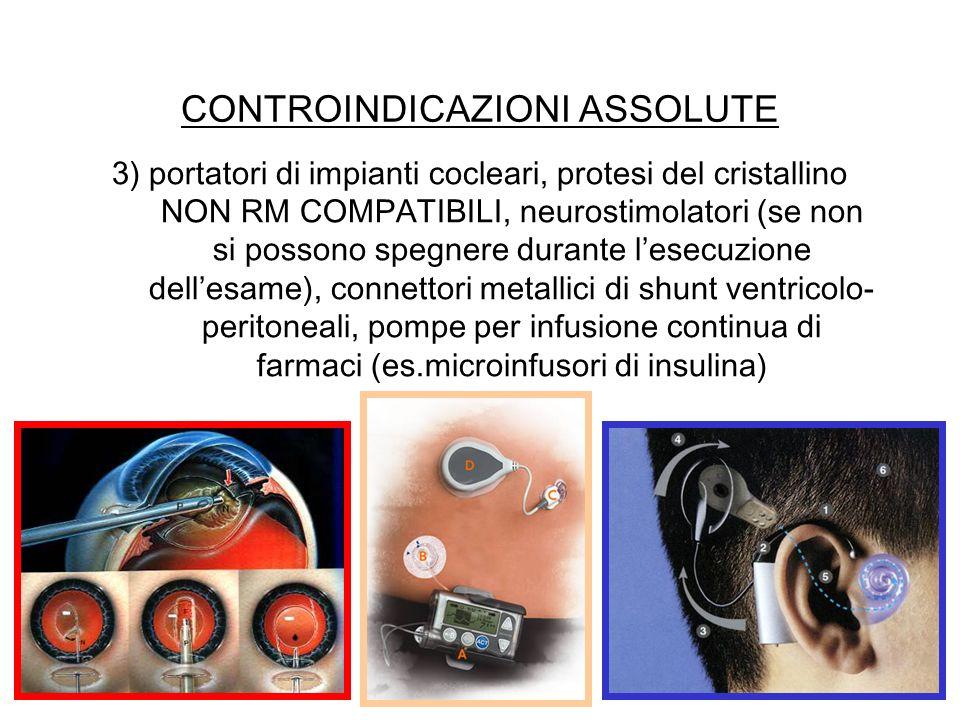 CONTROINDICAZIONI ASSOLUTE 3) portatori di impianti cocleari, protesi del cristallino NON RM COMPATIBILI, neurostimolatori (se non si possono spegnere
