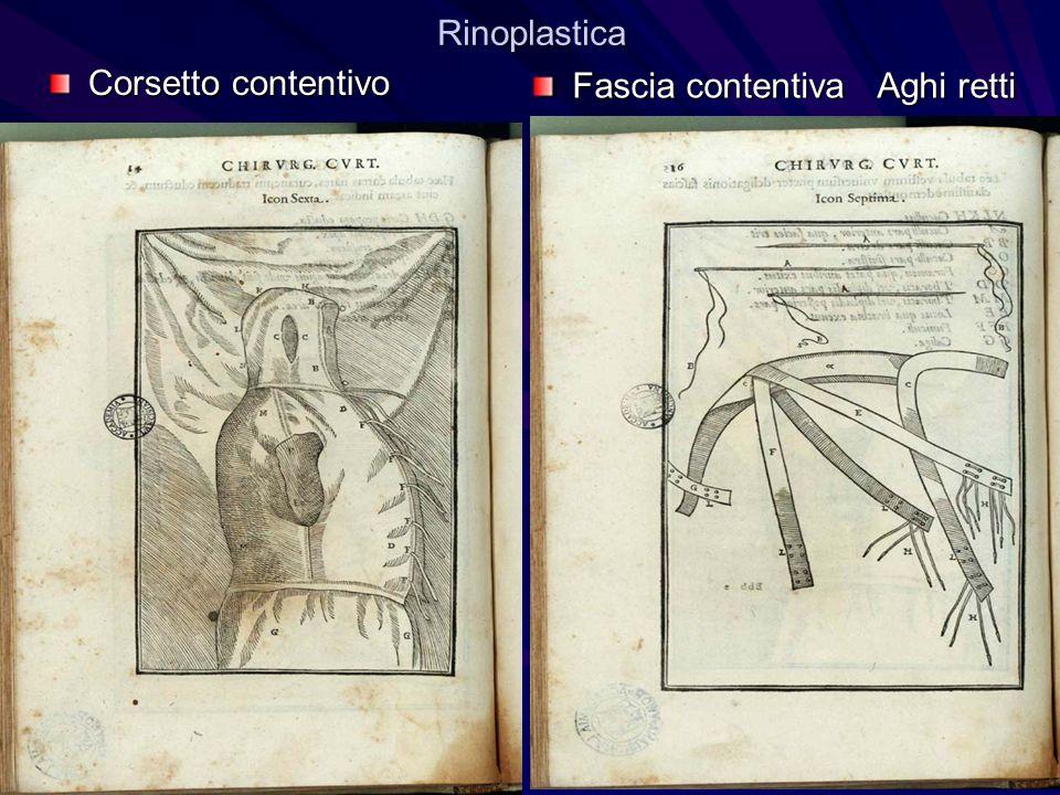 Rinoplastica Corsetto contentivo Fascia contentiva Aghi retti