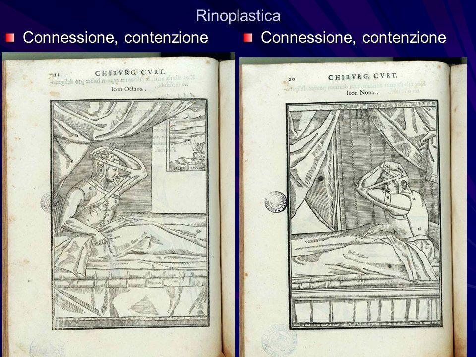 Rinoplastica Connessione, contenzione