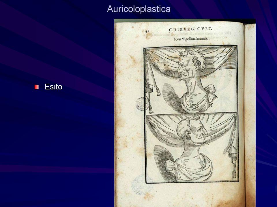 AuricoloplasticaEsito