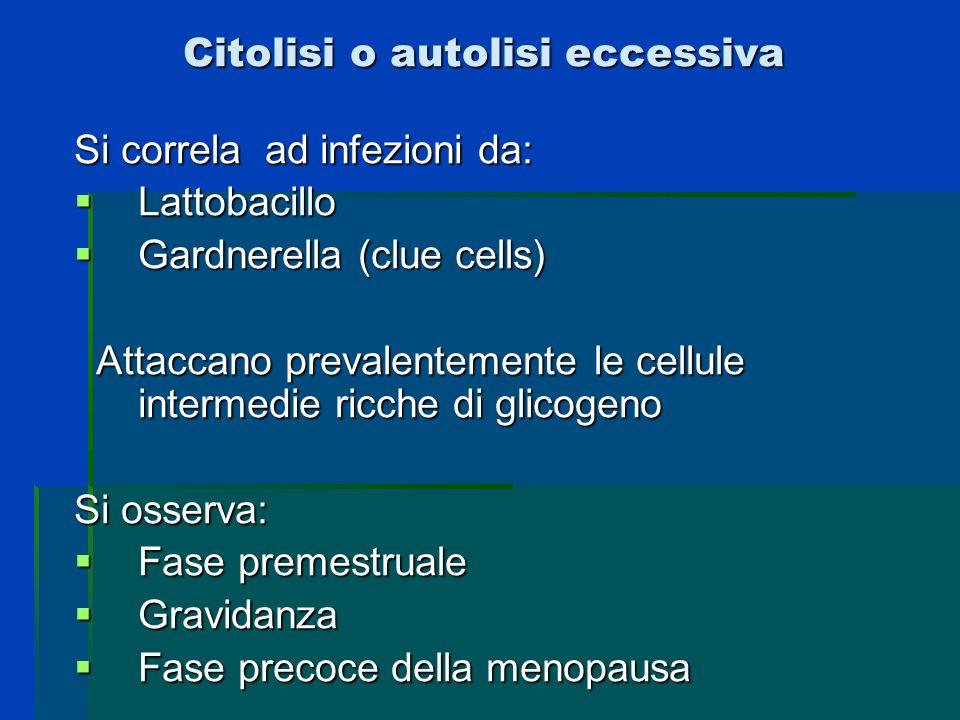 Citolisi o autolisi eccessiva Si correla ad infezioni da: Lattobacillo Lattobacillo Gardnerella (clue cells) Gardnerella (clue cells) Attaccano preval