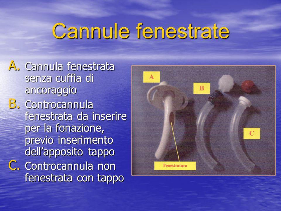 Cannule fenestrate A.Cannula fenestrata senza cuffia di ancoraggio B.