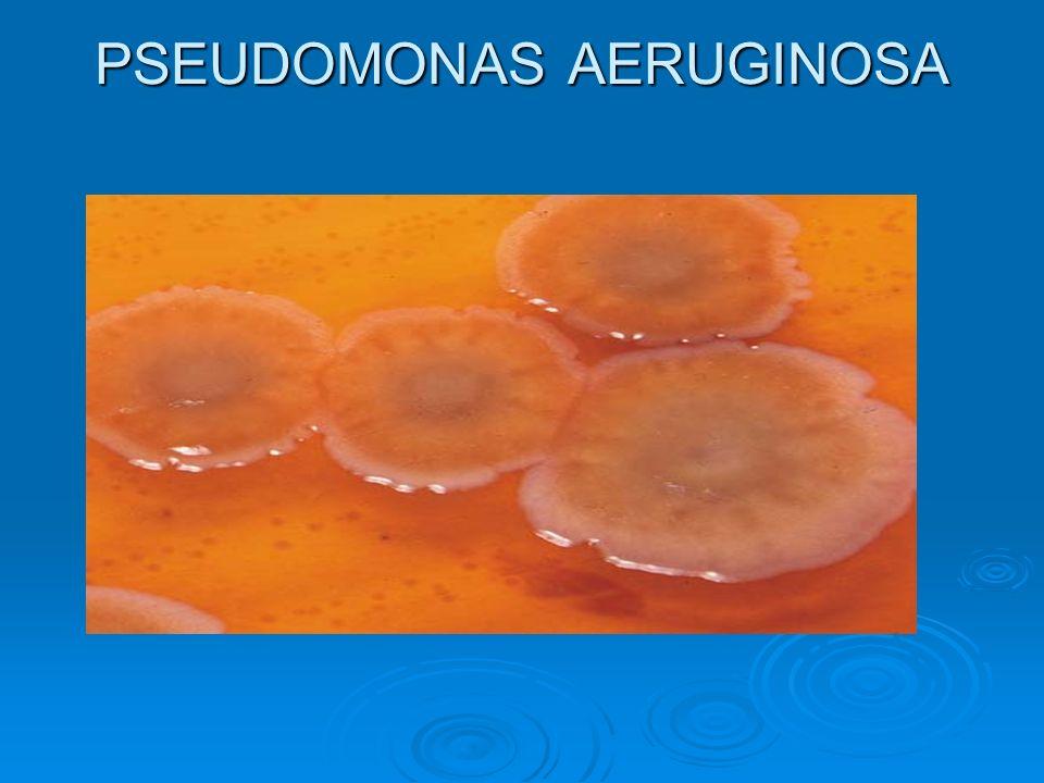 PSEUDOMONAS AERUGINOSA