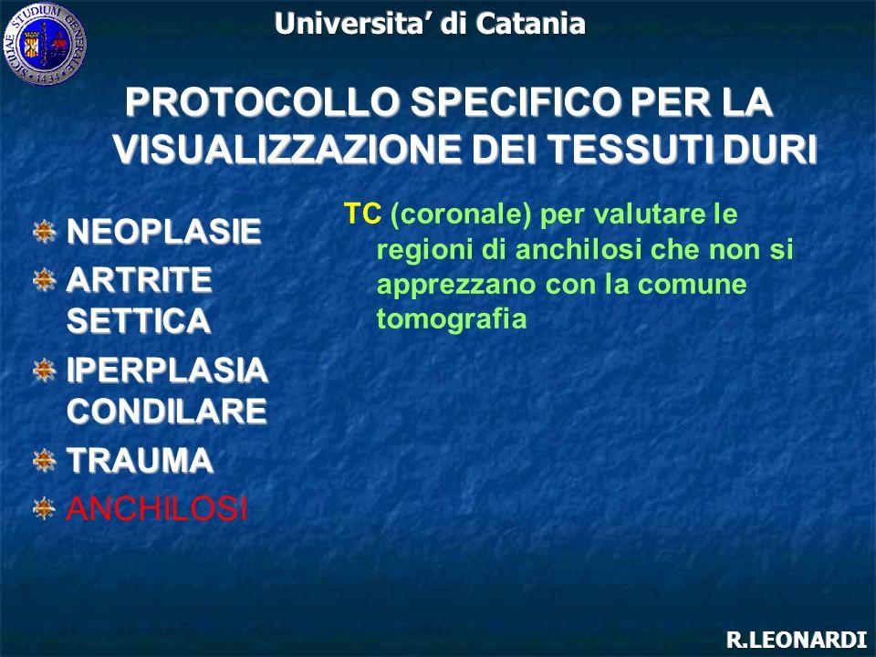 NEOPLASIE ARTRITE SETTICA IPERPLASIA CONDILARE TRAUMA ANCHILOSI PROTOCOLLO SPECIFICO PER LA VISUALIZZAZIONE DEI TESSUTI DURI TC (coronale) per valutar