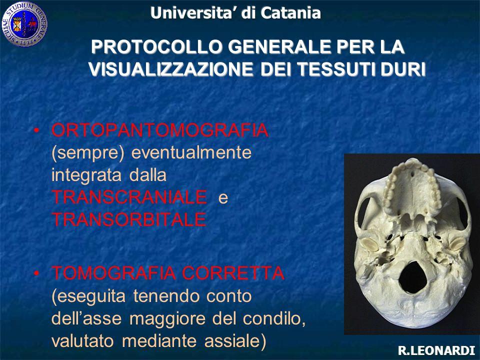 NEOPLASIE ARTRITE SETTICA IPERPLASIA CONDILARE TRAUMA ANCHILOSI PROTOCOLLO SPECIFICO PER LA VISUALIZZAZIONE DEI TESSUTI DURI OPM ingrandimento irregolare del condilo, riassorbimenti e calcificazioni TC per ottenere unimmagine tridimensionale ed un maggiore contrasto con i tessuti molli RM per visualizzare linteressamento dei tessuti molli