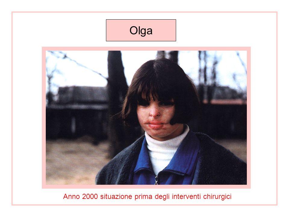 PROGETTO SANITARIO OLGA MUSIKANTOVA Si è trattato di porre rimedio, per quanto possibile, alle conseguenze di ustioni al volto causate da acido, su di una ragazza bielorussa.