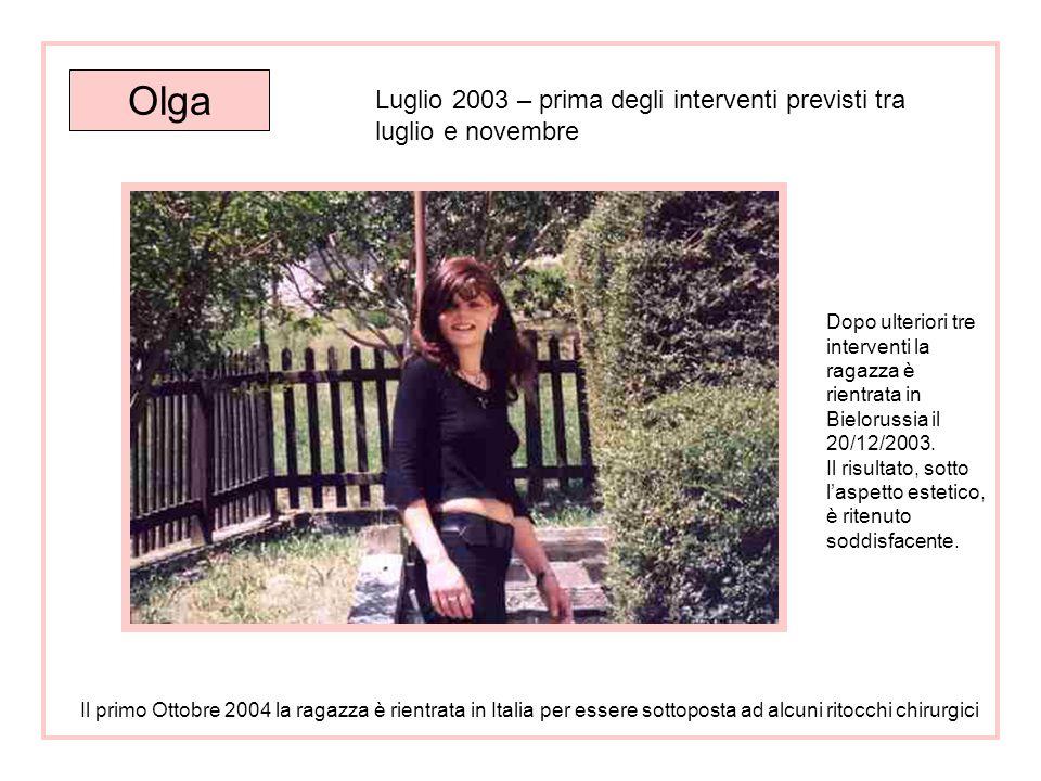 Olga Anno 2000 situazione prima degli interventi chirurgici
