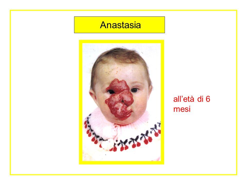 Progetto Sanitario Anastasia Anastasia é una bambina bielorussa, di 7 anni, nata con una grave forma di angioma Presentava ancora delle gravi alterazioni al volto.
