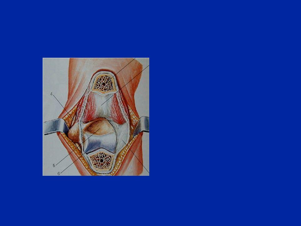 Fratture distali dellomero Sopra-condiliche Sopra e intercondiliche Condilo esterno Condilo interno