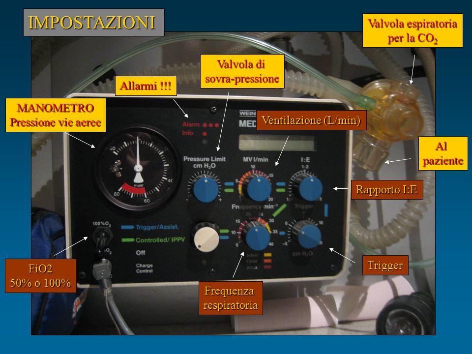 FiO2 50% o 100% Frequenzarespiratoria Rapporto I:E Ventilazione (L/min) IMPOSTAZIONI Alpaziente Valvola espiratoria per la CO 2 Allarmi !!! MANOMETRO